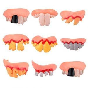 Happy Event Ugly Prothese Faulen Dents, modèle Dentelle, Tenue Parfaite grâce à Son Ajustement Individuel
